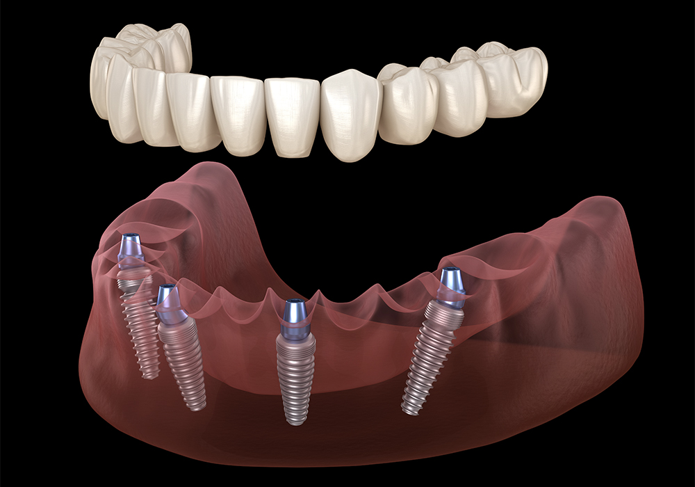 All-On-Four Dental Implant